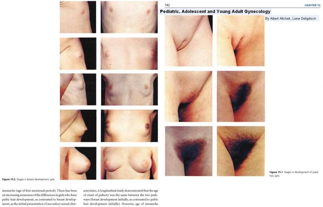 nude photos of female stages of puberty Pediatric, Adolescent and Young Adult Gynecology - (puberty FF) Tanner  Stages